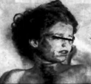 Mary Phagan: autopsy photograph